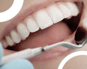 Facette-dentaire-avantage-inconvenient