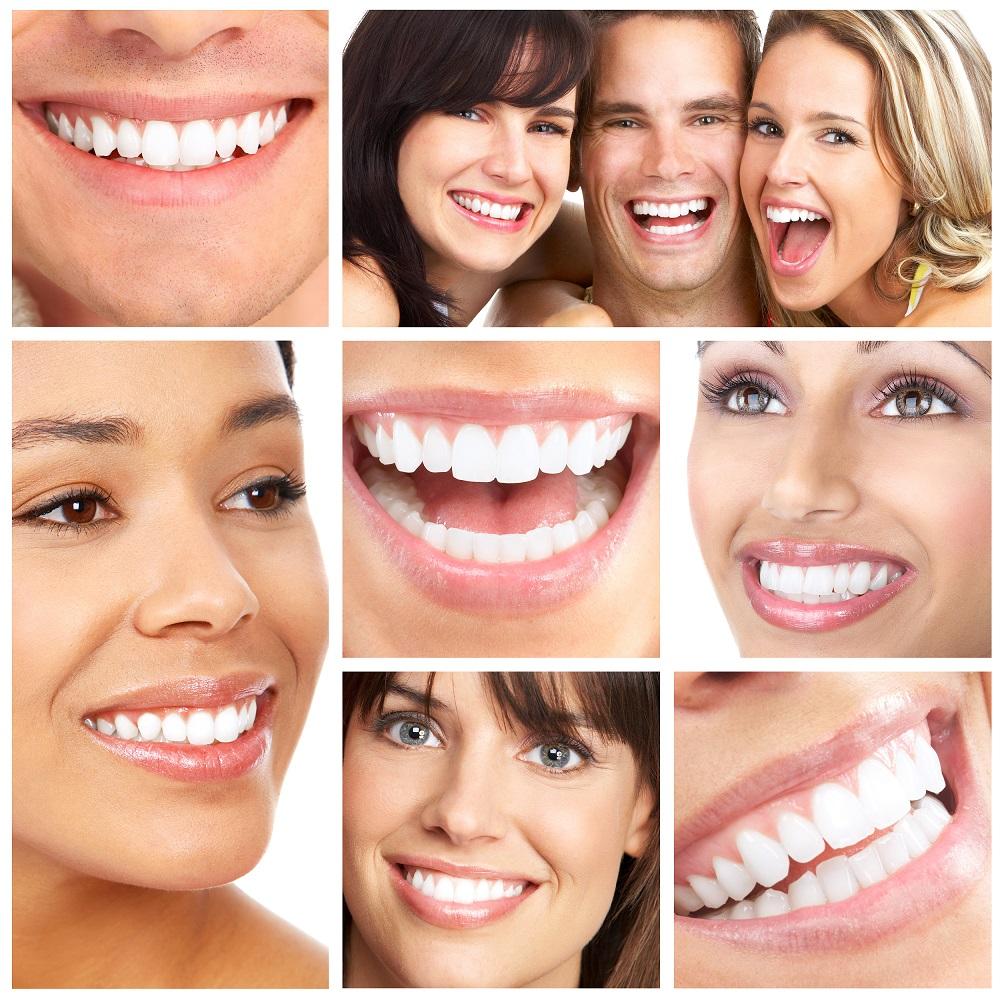 illustration objectifs facette dentaire
