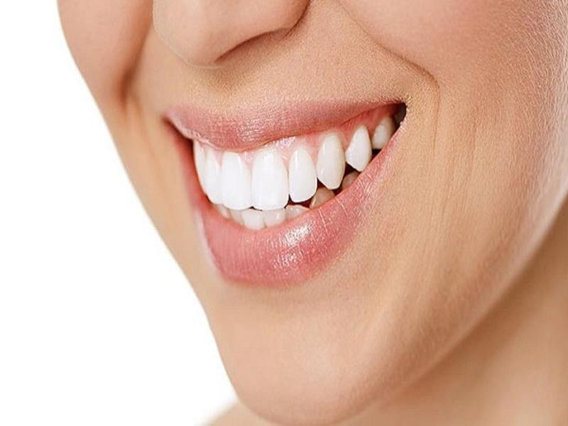 sourire blanc éclatant