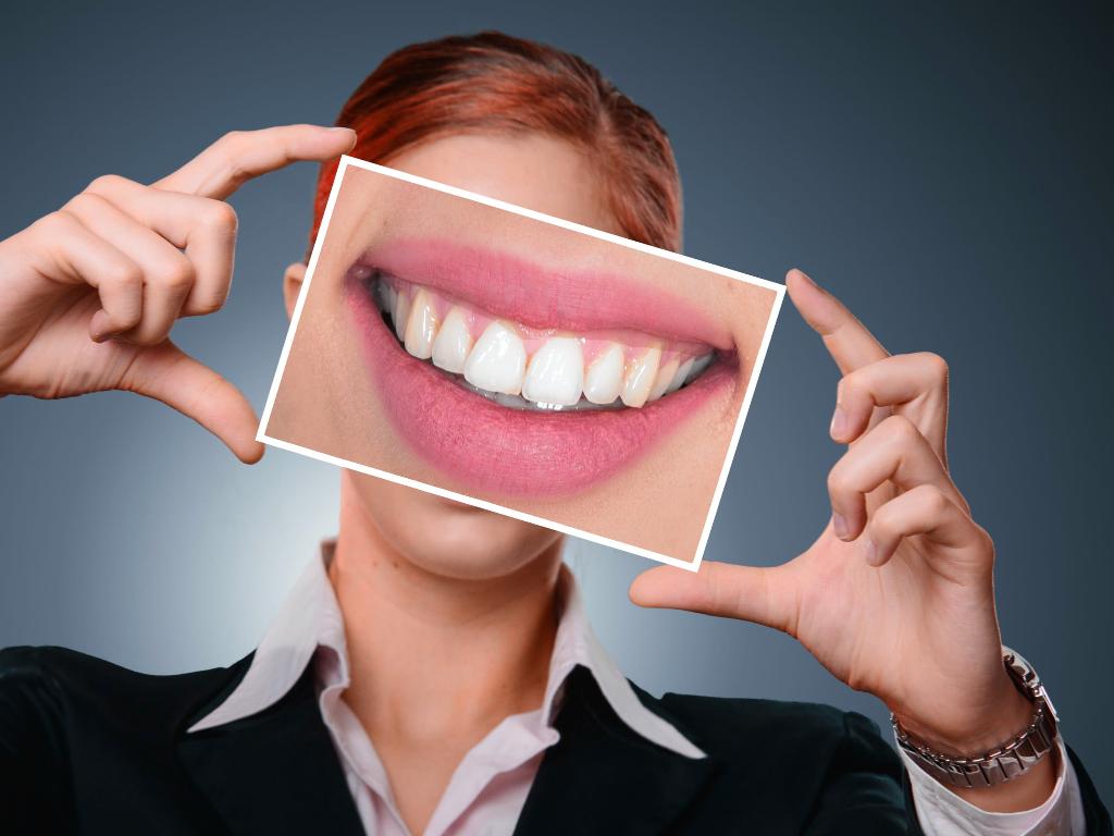 avantages-facette-dentaire
